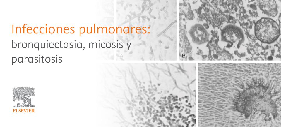 hongos en los pulmones causas