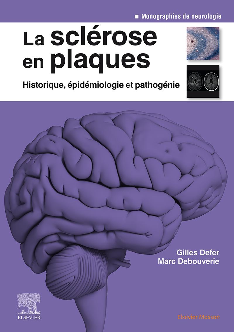 La sclérose en plaques – Historique, épidémiologie et pathogénie