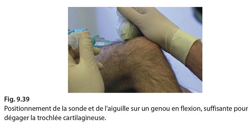 Fig. 9.39 Positionnement de la sonde et de l'aiguille sur un genou en flexion, suffisante pour dégager la trochlée cartilagineuse.