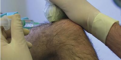 Infiltration de l'articulation du genou