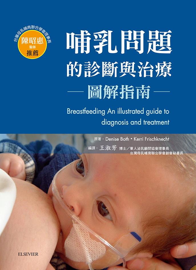 哺乳問題的診斷與治療