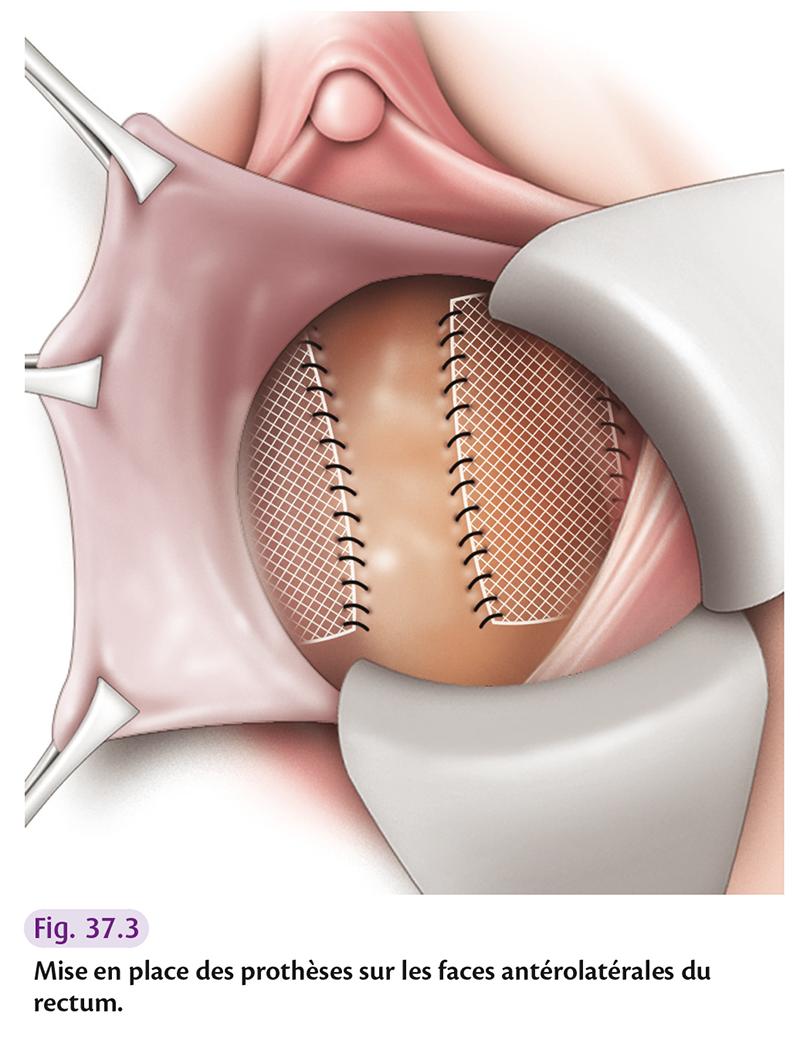 Mise en place des prothèses sur les faces antérolatérales du rectum.