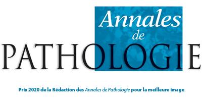 Prix 2020 de la Rédaction des Annales de Pathologie pour la meilleure image
