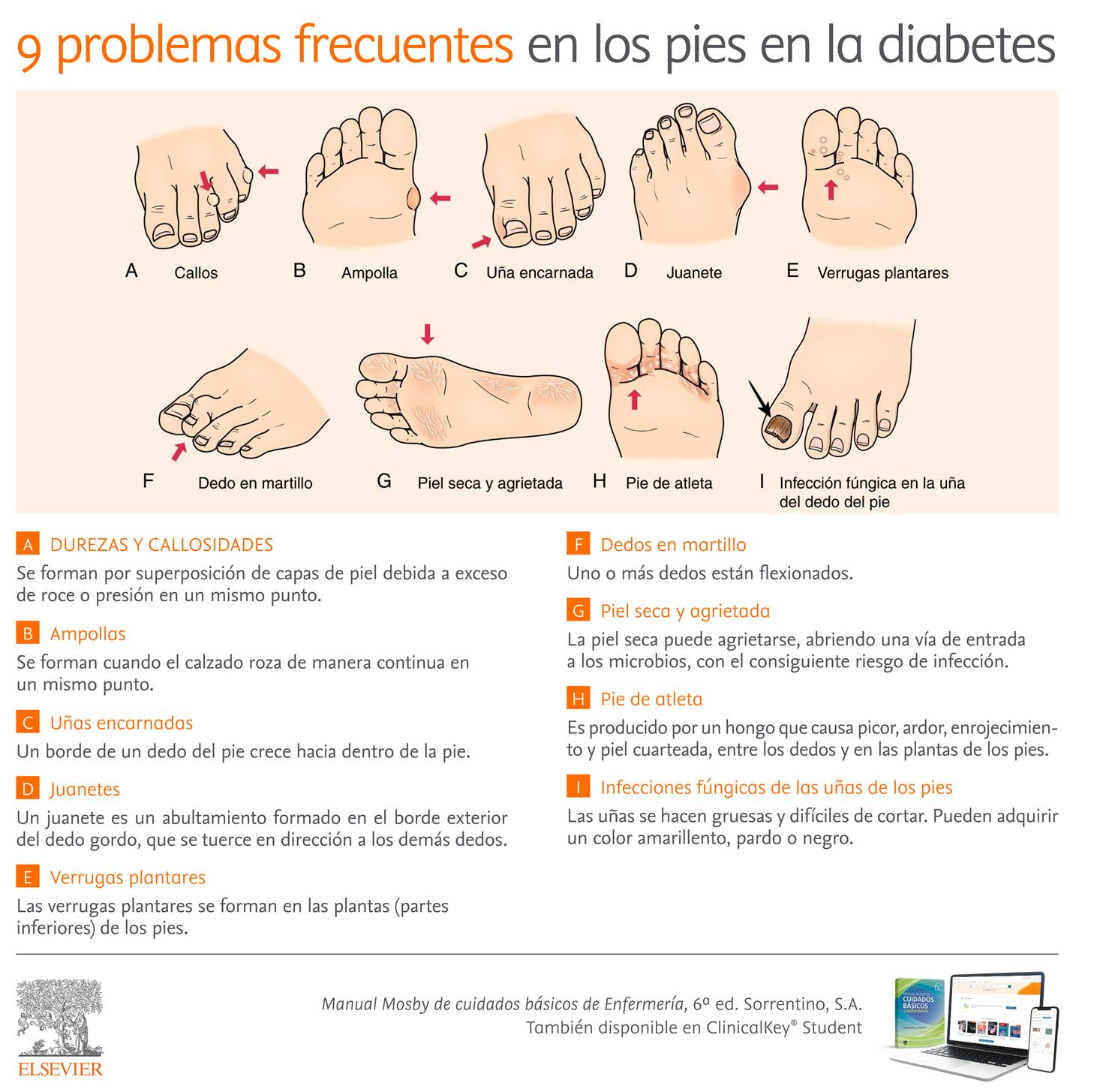 Infografia_9-problemas-frecuentes-pies-Diabetes.jpg