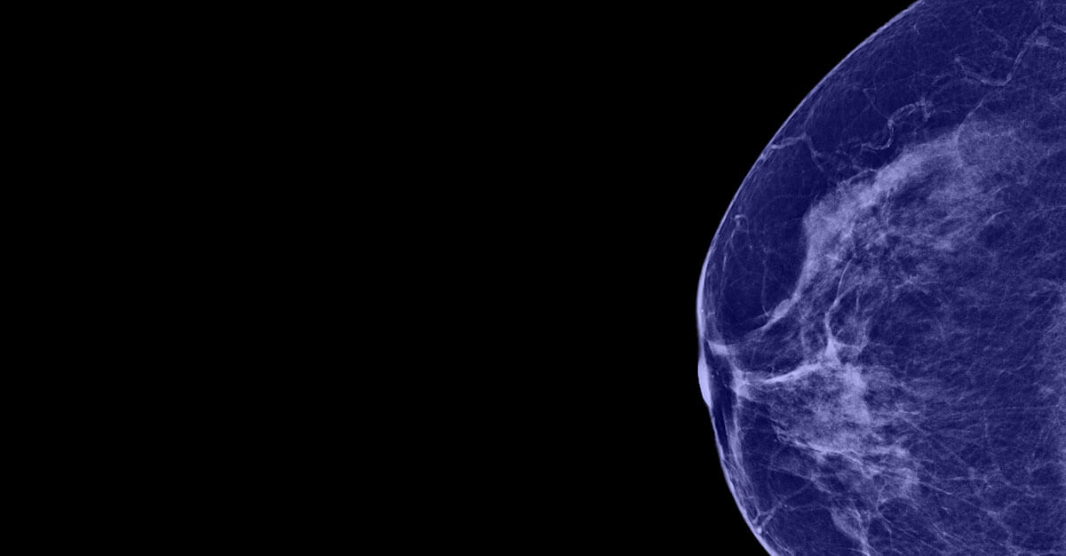 In radiology, testing new ways to screen for breast diseases