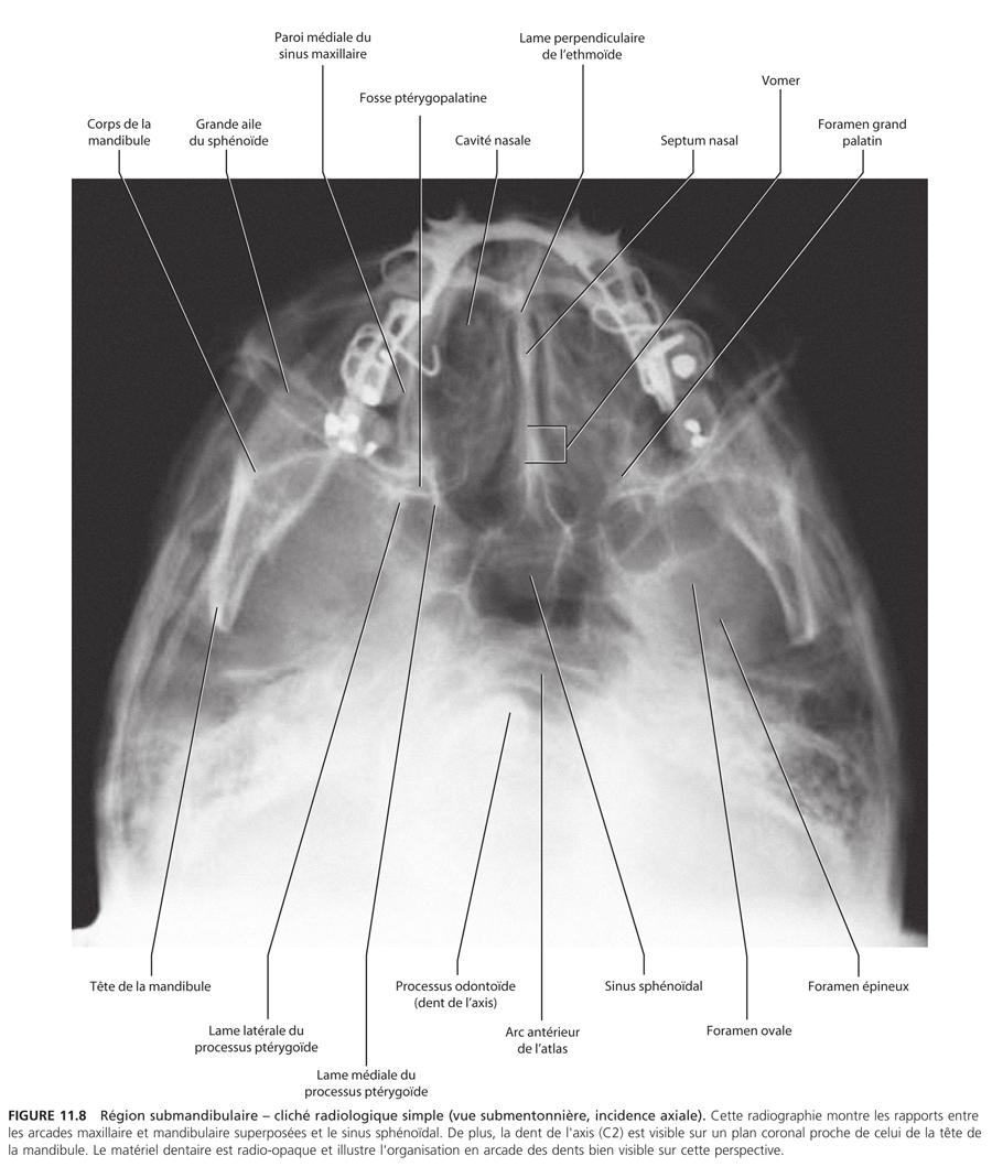 Région submandibulaire : Anatomie_8
