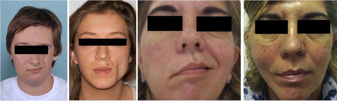 Hemiatrofia facial progresiva. Síndrome de Parry-Romberg, una rara enfermedad con impacto psicosocial