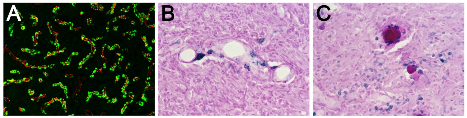 Three images of rat brain tissue, microhemorrhages and occluded microvessels.