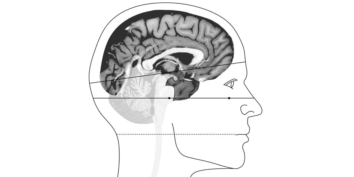 neuroanatomie-1200.jpg