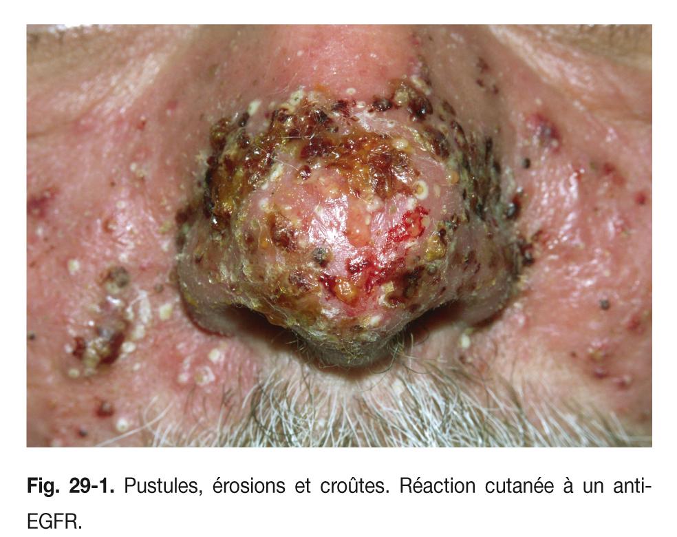 Fig. 29-1. Pustules, érosions et croûtes. Réaction cutanée à un anti- EGFR.