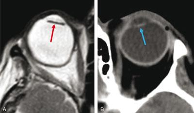 Implant après intervention pour cataracte sur globe myope en IRM T2 (fl èche rouge) (A) et en scanner (fl èche bleue) (B).