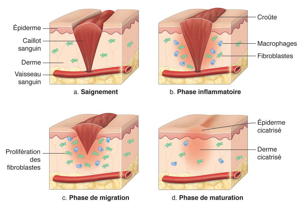 phase de la cicatrisation