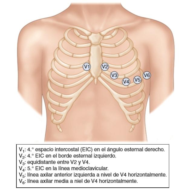 Pasos Para La Obtención De Un Electrocardiograma De 12 Derivaciones