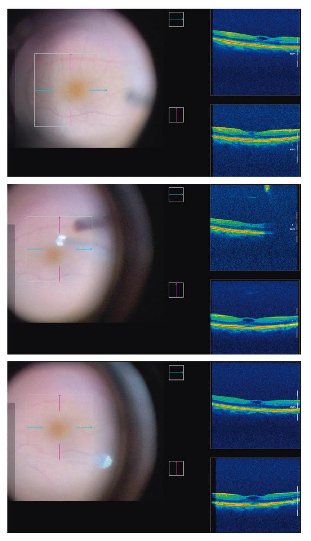 Trois OCT peropératoires durant la chirurgie d'une traction vitréomaculaire