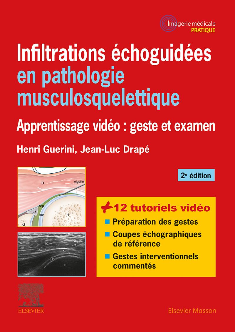 Livres  Infiltrations échoguidées en pathologie musculosquelettique