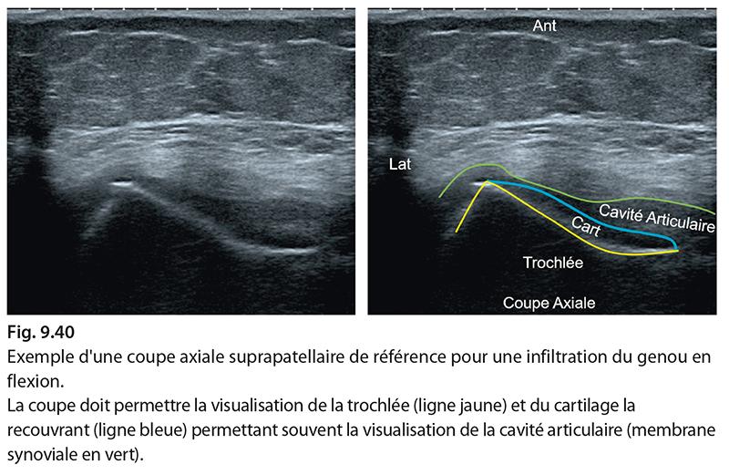 Fig. 9.40 Exemple d'une coupe axiale suprapatellaire de référence pour une infiltration du genou en flexion. La coupe doit permettre la visualisation de la trochlée (ligne jaune) et du cartilage la recouvrant (ligne bleue) permettant souvent la visualisation de la cavité articulaire (membrane synoviale en vert).