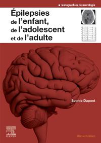 épilepsie thérapeutique