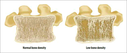 Bone density image (Source: US Department of Health & Human Services)