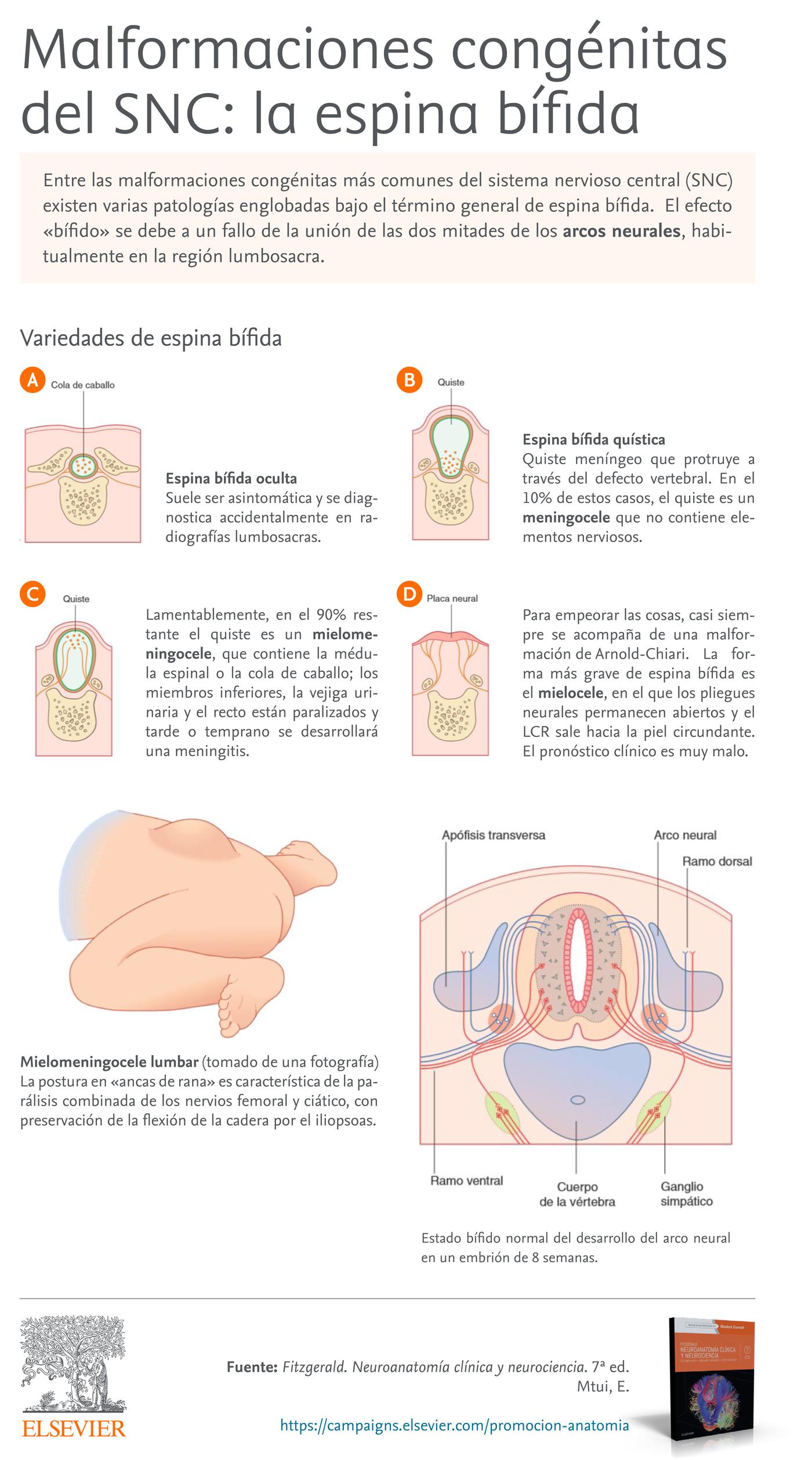 Apuntes de Anatomía. Malformaciones congénitas del SNC: la espina bífida