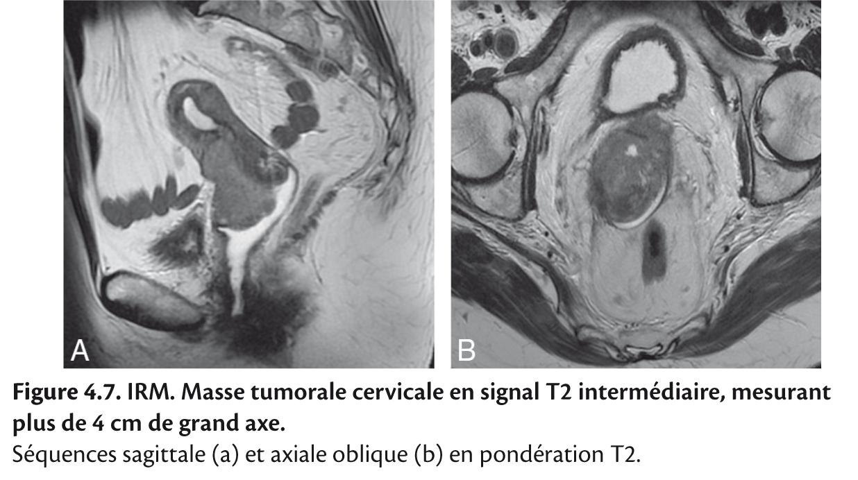 Figure 4.7. IRM. Masse tumorale cervicale en signal T2 intermédiaire, mesurant plus de 4 cm de grand axe.