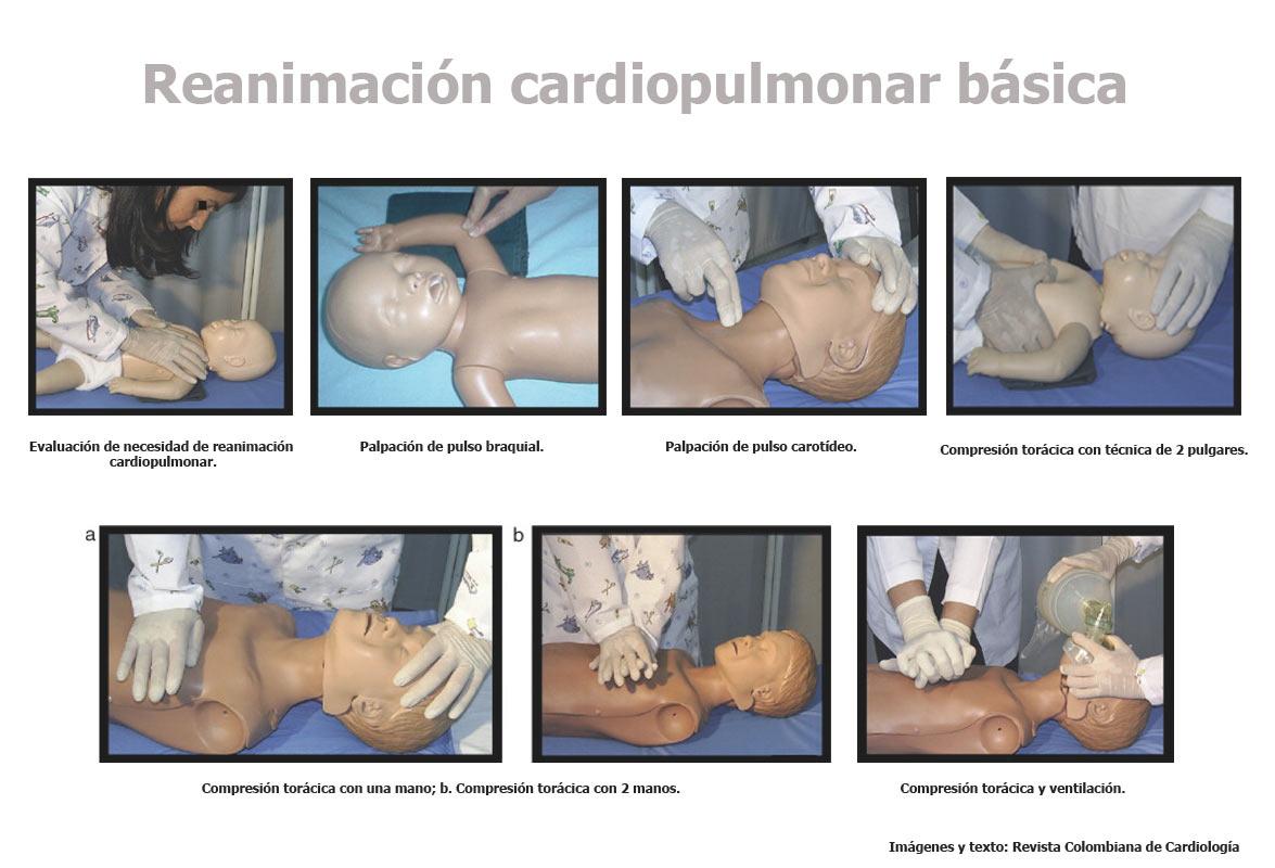 Signos y síntomas de alarma que indican la posible necesidad de reanimación