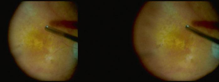 Utilisation de l'OCT peropératoire durant la chirurgie d'un fovéoschisis dans un oeil myope fort.