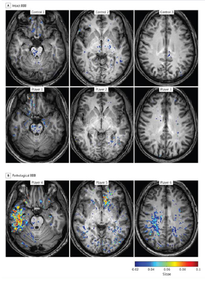Blood-Brain Barrier (BBB) Permeability in Football Players   (A) vs. a control group (B). The players in the pathological-BBB group (B)   presented focal BBB lesions in different cortical regions including   the temporal (player 4), frontal (player 5), and parietal (player 6) lobes.   Both gray and white matter were involved. (Source: Itai Weissberg et al)
