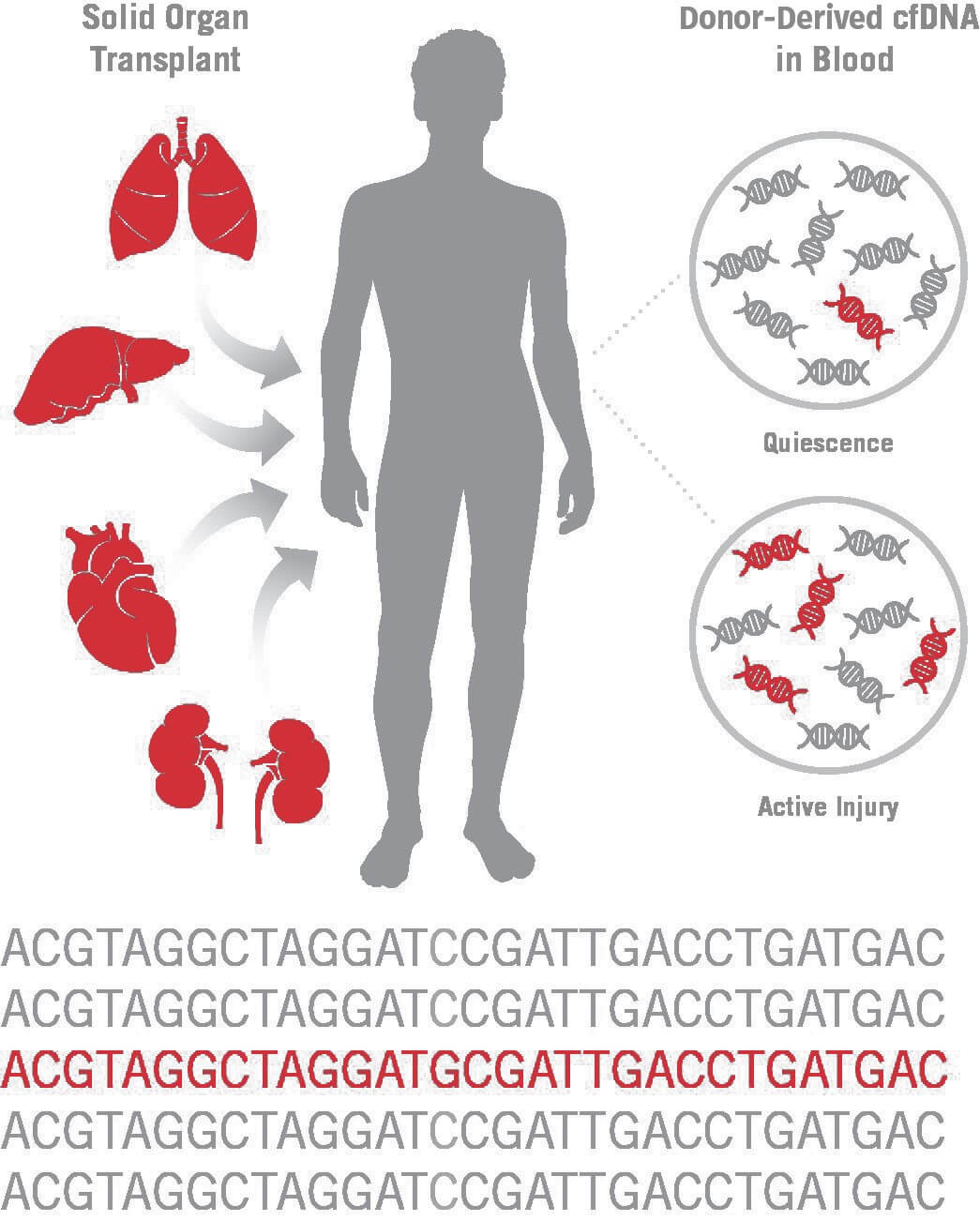 In solid organ transplant recipients, analysis of circulating cell-free DNA (cfDNA) offers advantages over invasive tissue biopsies for detection of rejection and immunotherapy surveillance. A by-product of cell death, cfDNA can be used to assess allograft injury by measuring donor-derived cfDNA (dd-cfDNA) against the background of recipient cfDNA. dd-cfDNA is quantified by analytically validated clinical-grade next-generation sequencing assay utilizing single nucleotide polymorphisms distributed across the genome to differentiate donor and recipient cfDNA. Credit: CareDx, Inc.