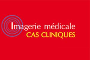Cas clinique : Troubles de la mémoire et céphalées chroniques