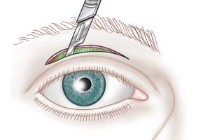 Chirurgie palpébrale : Ptosis