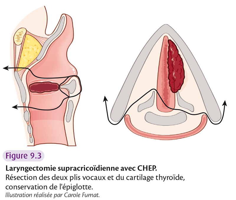 Figure 9.3 Laryngectomie supracricoïdienne avec CHEP.