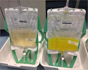 Early warning system for catheter blockages could prevent life-threatening infections