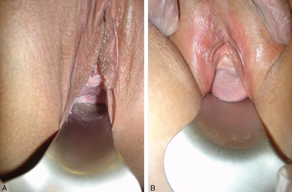 Première consultation et examen clinique de la femme incontinente urinaire_6