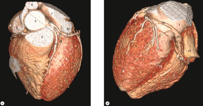 Weir Adams anatomía corazón 3D