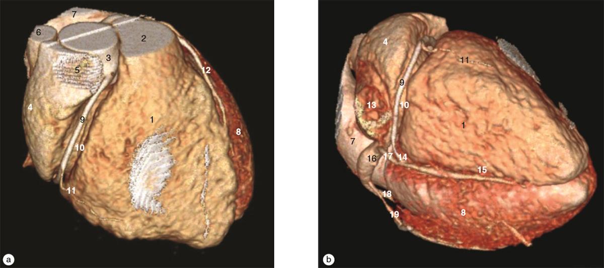 Visión completa de estructuras y relaciones anatómicas del corazón (3D)