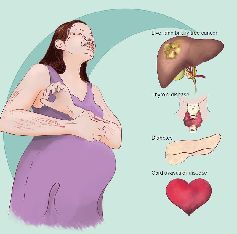У беременных симптомы