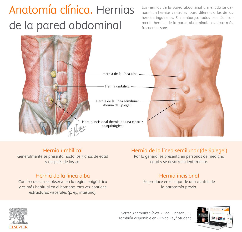 Anatomía clínica. Hernias de la pared abdominal