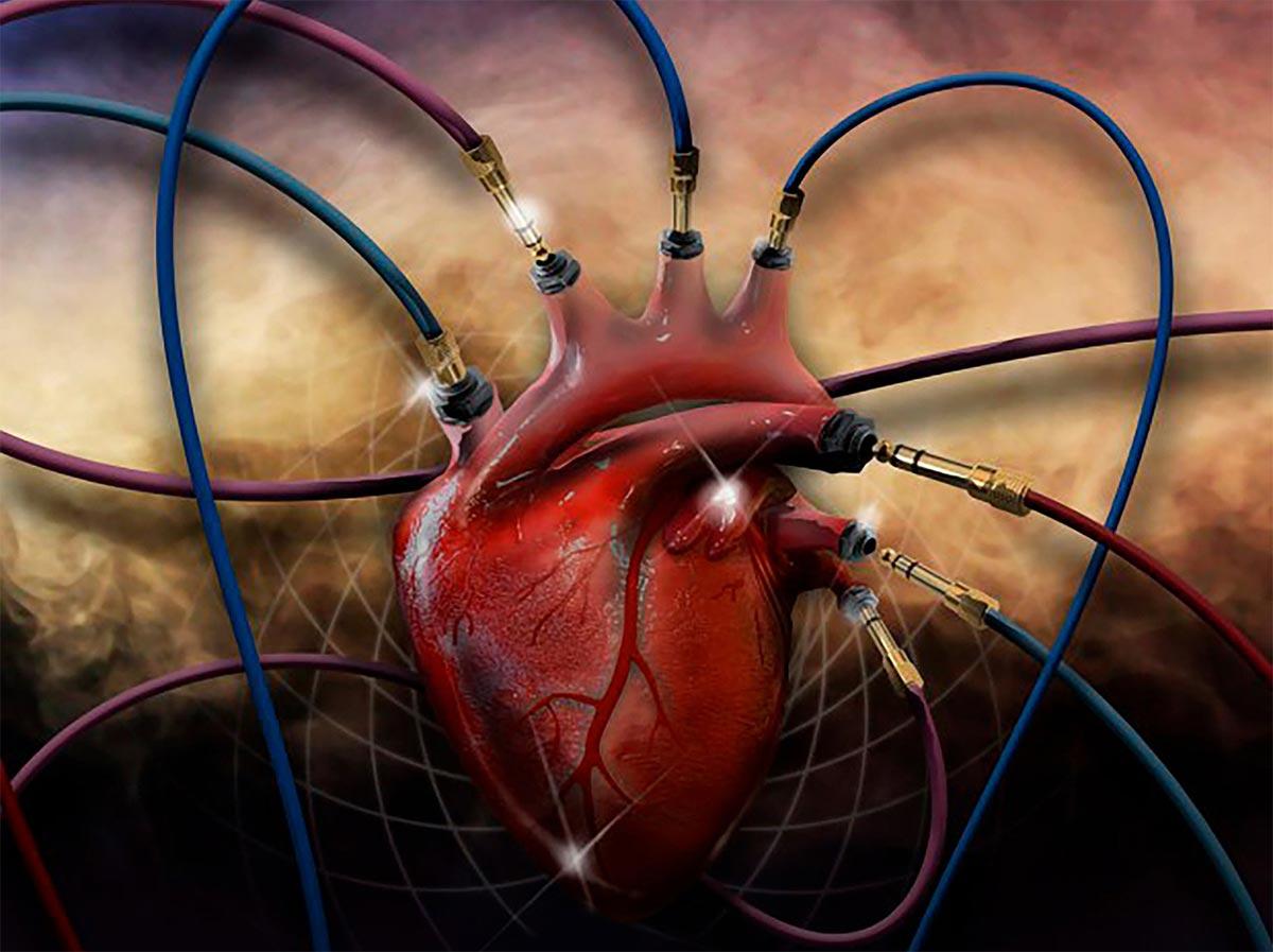 coartacion-aortica.jpg