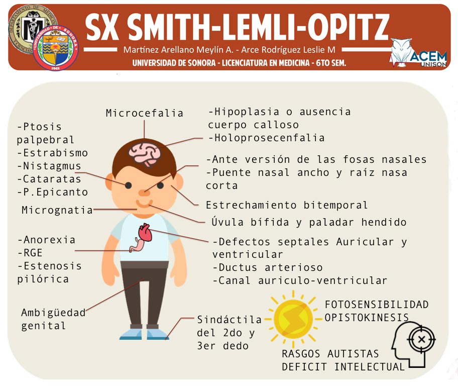 Sindrome-Smith-principal.jpg