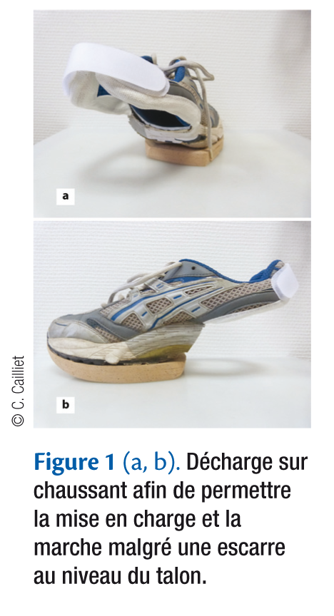 Figure 1 (a, b). Décharge sur chaussant afi n de permettre la mise en charge et la marche malgré une escarre au niveau du talon.