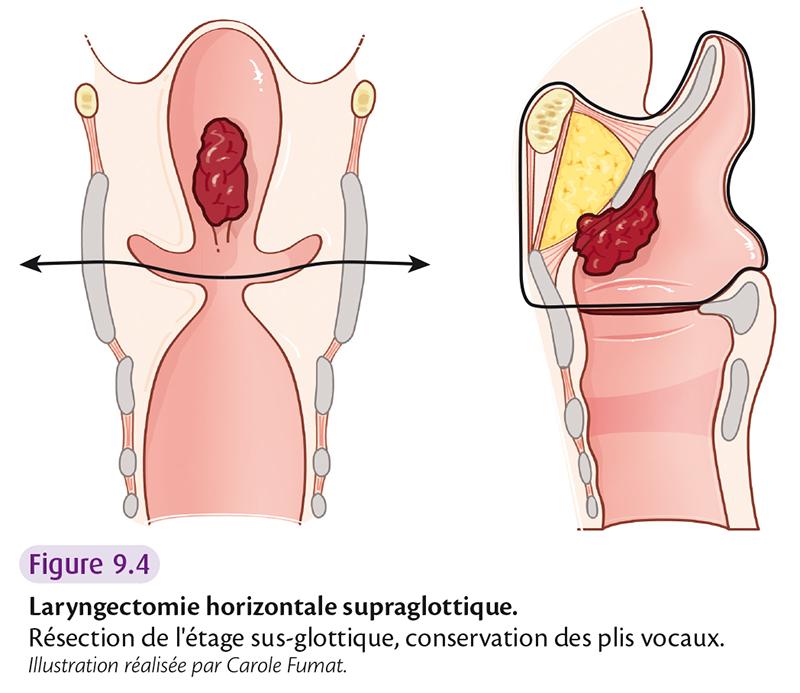 Figure 9.4 Laryngectomie horizontale supraglottique.