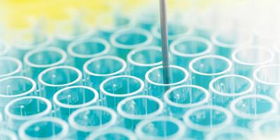 Exploration des dermatoses auto-immunes