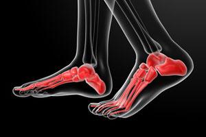 « Pathologie du pied et de la cheville »