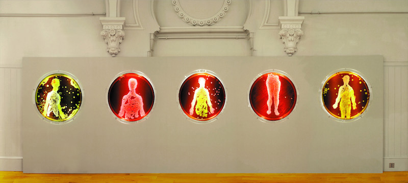 Peta Clancy's <em>Visible Human Bodies</em>, 2005. Brighton Museum and Art Gallery, UK. Duratran, Perspex, fluorescent lights, 80cm diameter (each image). (Photo: Phillip Carr)