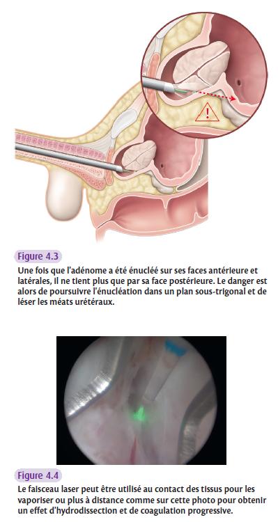 Une fois que l'adénome a été énucléé sur ses faces antérieure et latérales, il ne tient plus que par sa face postérieure. Le danger est alors de poursuivre l'énucléation dans un plan sous-trigonal et de léser les méats urétéraux.
