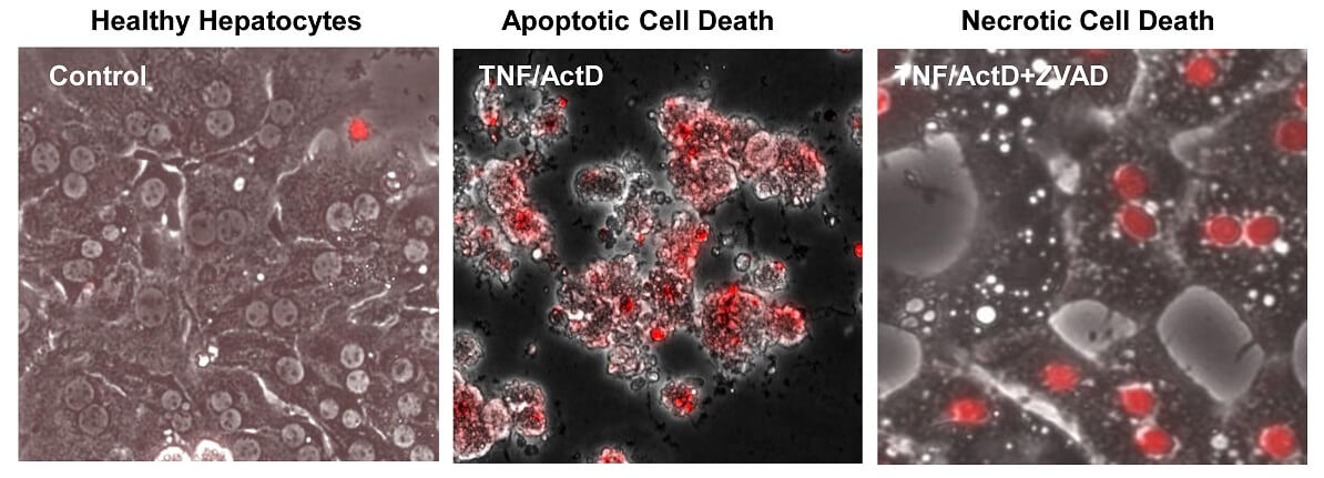 Inhibition of caspases by ZVAD switched TNF/ActD-induced apoptosis to necrosis