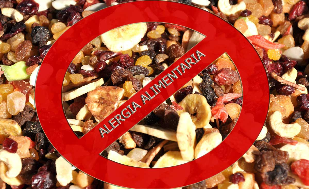 Alergia-alimentaria.jpg