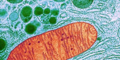 Síndrome de depleción del ADN mitocondrial: un nuevo desafío para la medicina