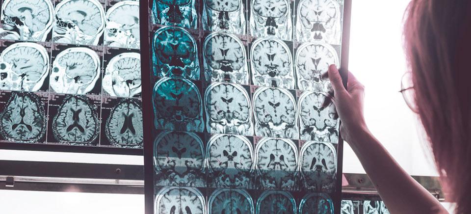 Demencia vascular: la segunda causa de demencia a nivel mundial, tras el alzhéimer
