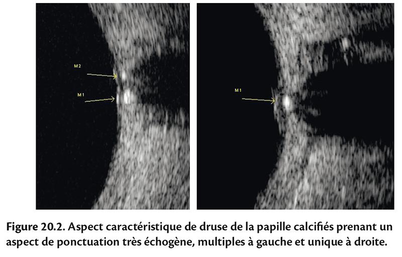Figure 20.2 . Aspect caractéristique de druse de la papille calcifi és prenant un aspect de ponctuation très échogène, multiples à gauche et unique à droite.